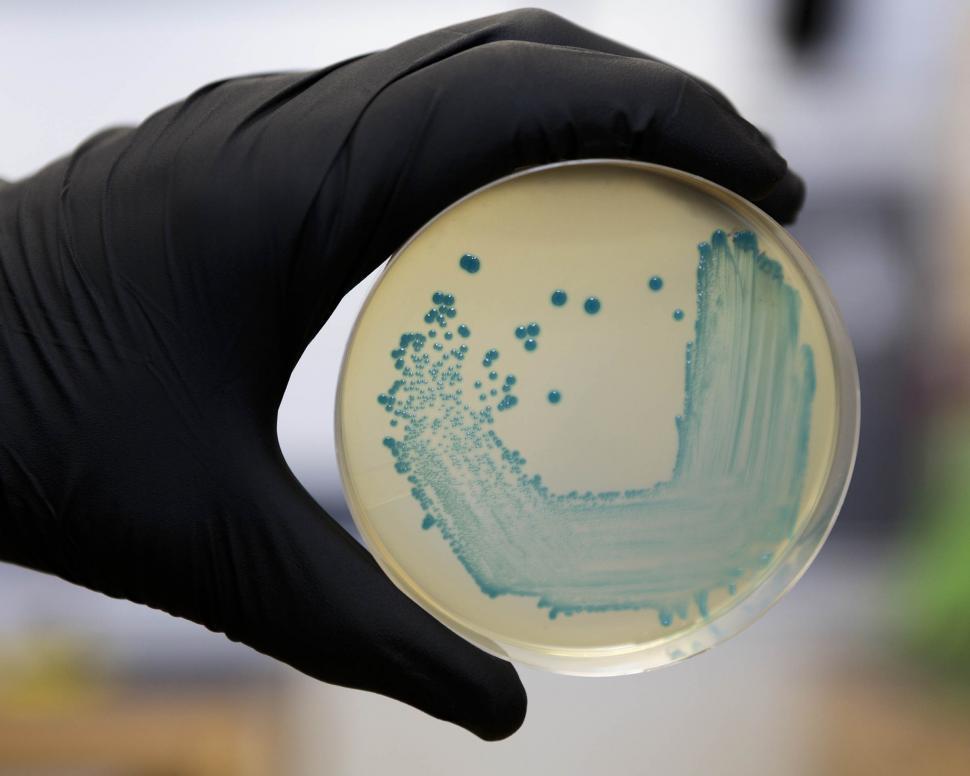 vérification contamination